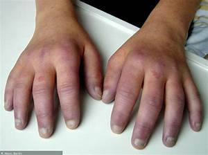 Lupus Erythematodes Selbsthilfegruppe Darmstadt Dermatomyositis