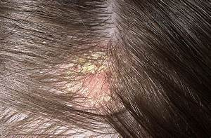 Is Your Blonde Hair Getting Too Expensive How To Maintain
