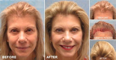 Female Hair Transplant Photos | Bernstein Medical
