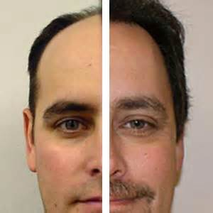 Hair Implants Louisville Tn 37777 Hair Transplant Affordable Easy And Lots Of Hair