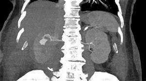 Aneurysma spurium