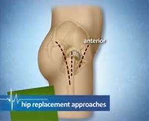 Direct Anterior Approach Total Hip Arthroplasty - Bayside ...