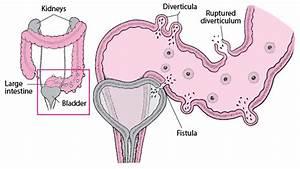 Diverticulitis - Digestive Disorders