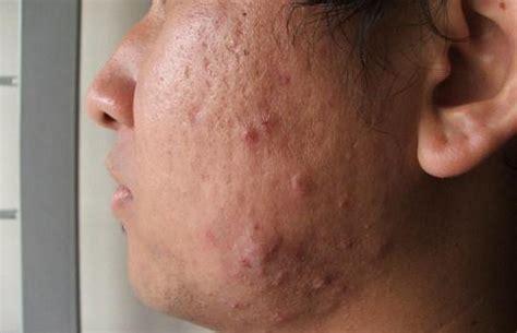 mallorca acne gallery
