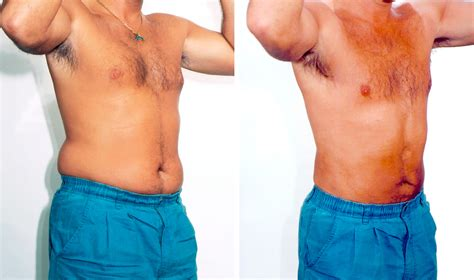 Liposuction  Skin Life Clinic. Virtual Office Management Online Ms Programs. Nassau County Criminal Lawyers. Part Time Online Mba Programs. Broward County Bondsman Cable Tv Knoxville Tn. Medical Billing Companies Nj. Colleges With Pa Programs All County Chem Dry. Weight Loss Surgery Doctors Phd In Economics. Examples Thermal Energy Dr Silberg Dearborn Mi