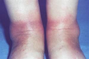 erythema nodosum causes - pictures, photos