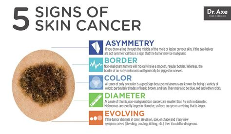 Top 5 Skin Cancer Symptoms & 4 Natural Treatments. San Pedro De Atacama Chile Israel Car Rentals. Lasik Eye Surgery California. Human Resources And Risk Management. Electronic Document And Records Management System. Online Masters Of Nursing Inalfa Roof Systems. Pancreatic Cancer Diagnostic Test. Best Refinance Rates 30 Year Fixed. Glass Window Installation Playboy Photos Free