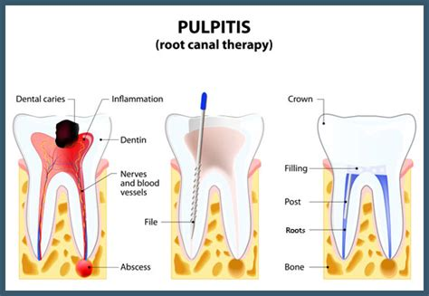root canal treatment dr feldstein dds