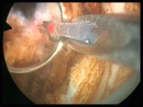 tur prostata video