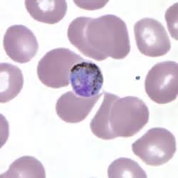 Malaria - Plasmodium malariae: Gametocytes