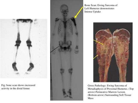 sarcoma ewing ewings bone vandana dr scan femur marrow ct humerus biopsy distal lung chest mets left