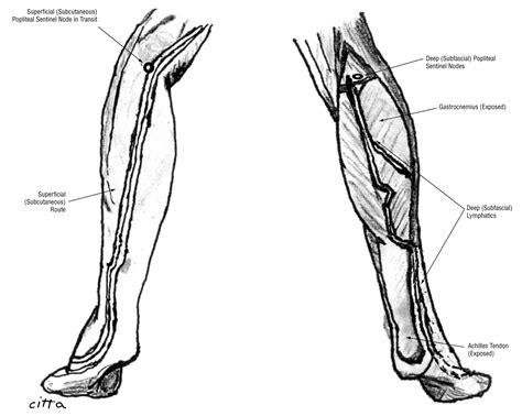 lymphatic drainage   popliteal basin  distal
