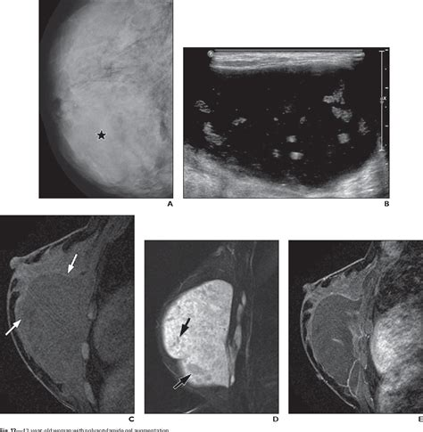 Insurance usually will not cover breast enlargement surgery. Figure 2 from Challenges in mammography: part 2, multimodality review of breast augmentation ...
