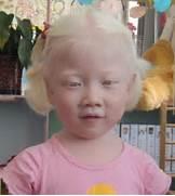 Albino Chinese Kid Oh ...