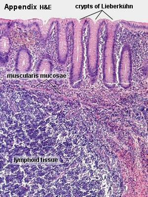 anatomy  appendix  appendicitis medchrome
