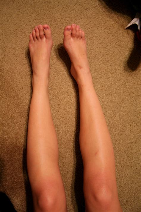 Does a Blood Clot in the Calf Carry Any Symptoms