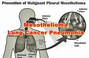 Mesothelioma Lung Cancer Pneumonia - Asbestos  Pneumonia Asbestos