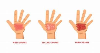 Burn Degree Burns Treat Treatment Degrees Dry