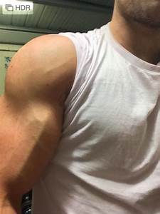How To Increase Vascularity For Road Map Veins