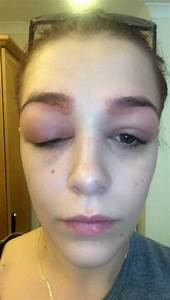19-year-old Polly Smith's HD eyebrow treatment went very ...