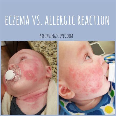 Eczema Vs Allergic Reaction