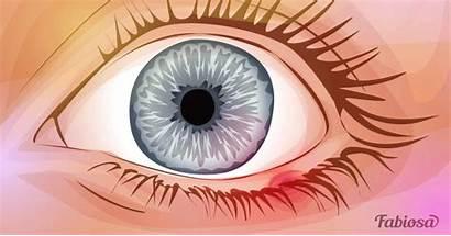 Styes Doctor Prevent Eye Them Away Own