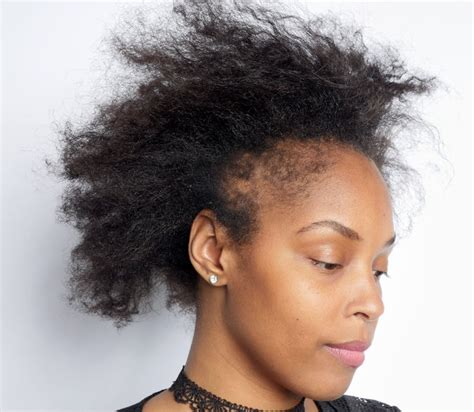What Black Women Need to Know About Hair Loss - The New