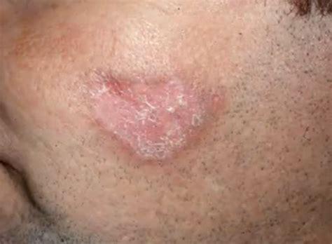 tub rash contagious lupus rash images contagious symptoms causes treatment