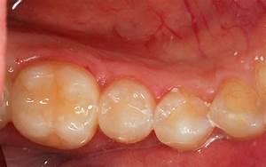 Болят суставы челюсти после удаления зуба