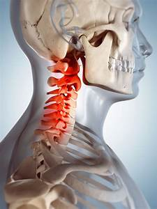 Number Of Cervical Spine Surgeries Increased In The Last