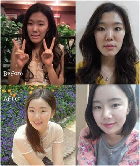 wajah asli  korea  operasi plastik