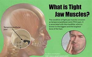Tight Jaw Muscles