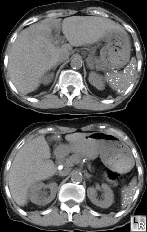 learning radiology histoplasmosis