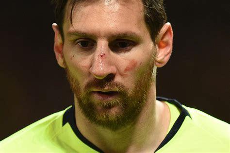 barcelona star lionel messi left bleeding  nose