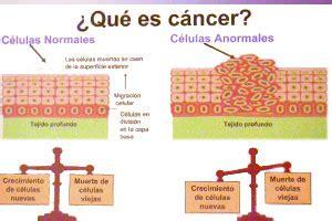 q es cancer hepatico que es cancer