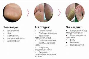 Мазь клотримазол от грибка на ногтях