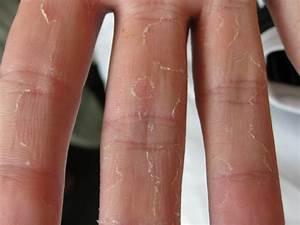 psoriasis ziekte