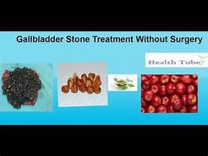GallBladder Stone treatment Without Surgery - YouTube