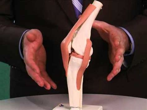 Plica Injuries - Damage to Knees' Connective Tissue - YouTube