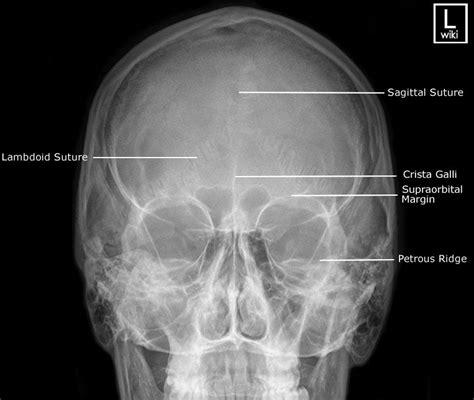 skull pa xray ray radiography caldwell bones fracture projection facial anatomy head medical radiograph axial radiology lateral cranium radiologic technology