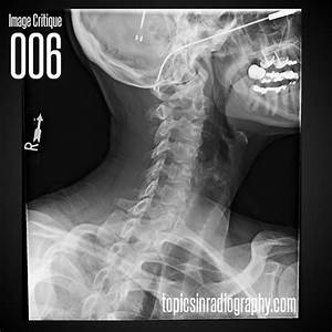 What 3 Things Would You Change On This Radiograph To Make