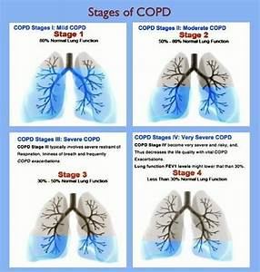 259 Best Images About Copd On Pinterest