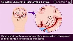 Animation Showing An Haemorrhagic Stroke