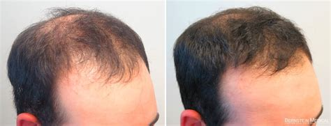Propecia Rogaine Before After Photos | Bernstein Medical