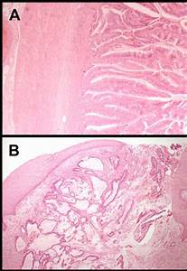 Appendiceal Mucinous Adenocarcinoma Presenting As An Enterocutaneous Fistula In An Incisional