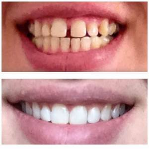 Gap Teeth Before And After Braces | www.pixshark.com ...