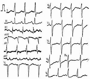 Гипертрофия левого желудочка сердца при гипертонии