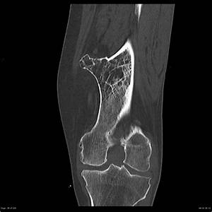 Osteochondroma
