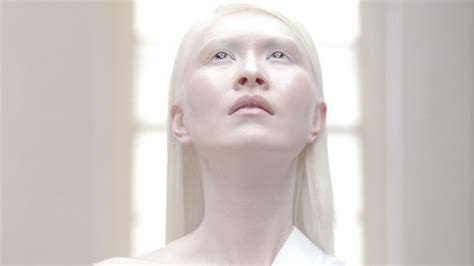 Worlds First Albino Model Connie Chiu On Growing Up In