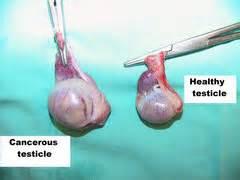 testicular cancer self examination Testicular Cancer